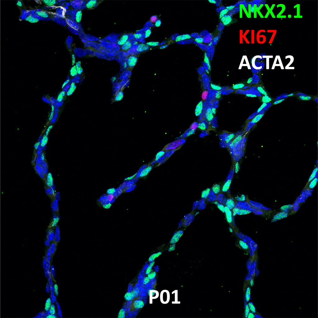 Post Natal Day 1 Confocal Imaging Showing Protein Expression of Nkx2.1, Ki67, and Acta2 Genes