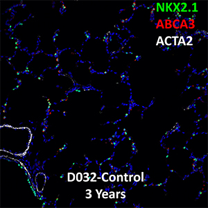 3 Year Human Lung NKX2.1, ABCA3, and ACTA2 Confocal Imaging