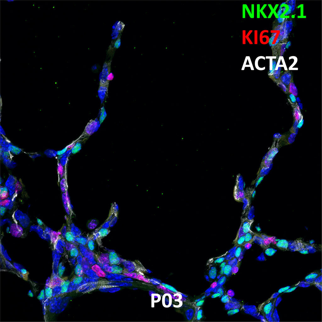 Post Natal Day 3 Confocal Imaging Showing Protein Expression of Nkx2.1, KI67, and Acta2 Genes