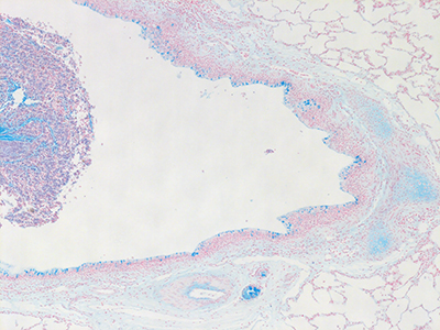 Alcian Blue Staining of 21 Month-Old Human Lung D043-RLL-11B3