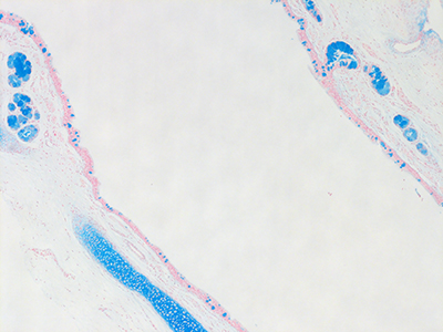 Alcian Blue Staining of 6 Day-Old Human Lung D044-RLL-9A2