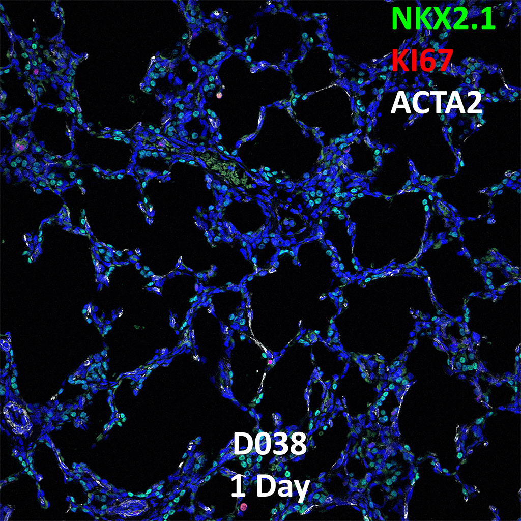 1 Day-Old Human Lung Immunofluorescence and Confocal Imaging Showing Expression of Nkx2.1, Ki67, and Acta2 Genes