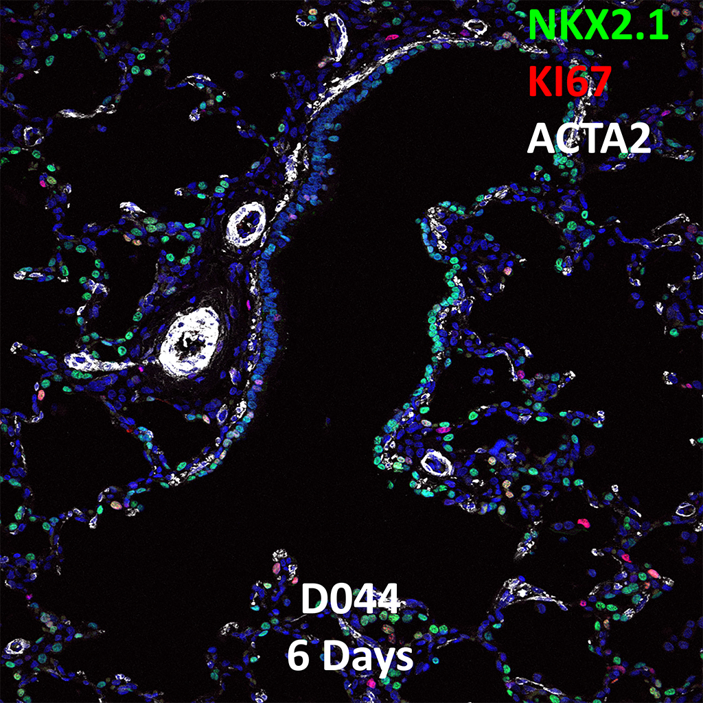 6 Day-Old Human Lung Immunofluorescence and Confocal Imaging Showing Expression of Nkx2.1, Ki67, and Acta2 Genes