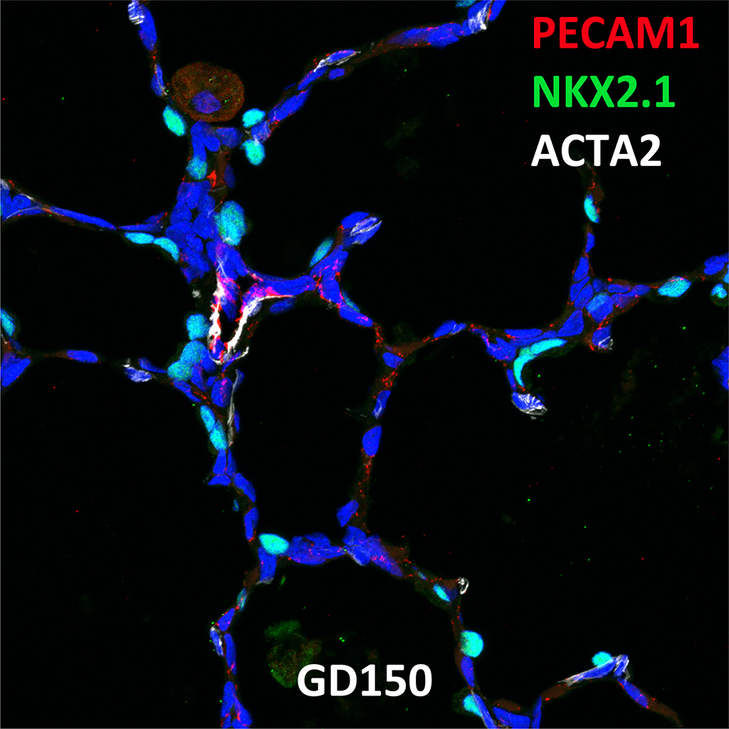 GD150 Fetal Monkey Lung Immunofluorescence and Confocal Imaging Showing Expression of NKX2.1, PECAM-1, and ACTA2