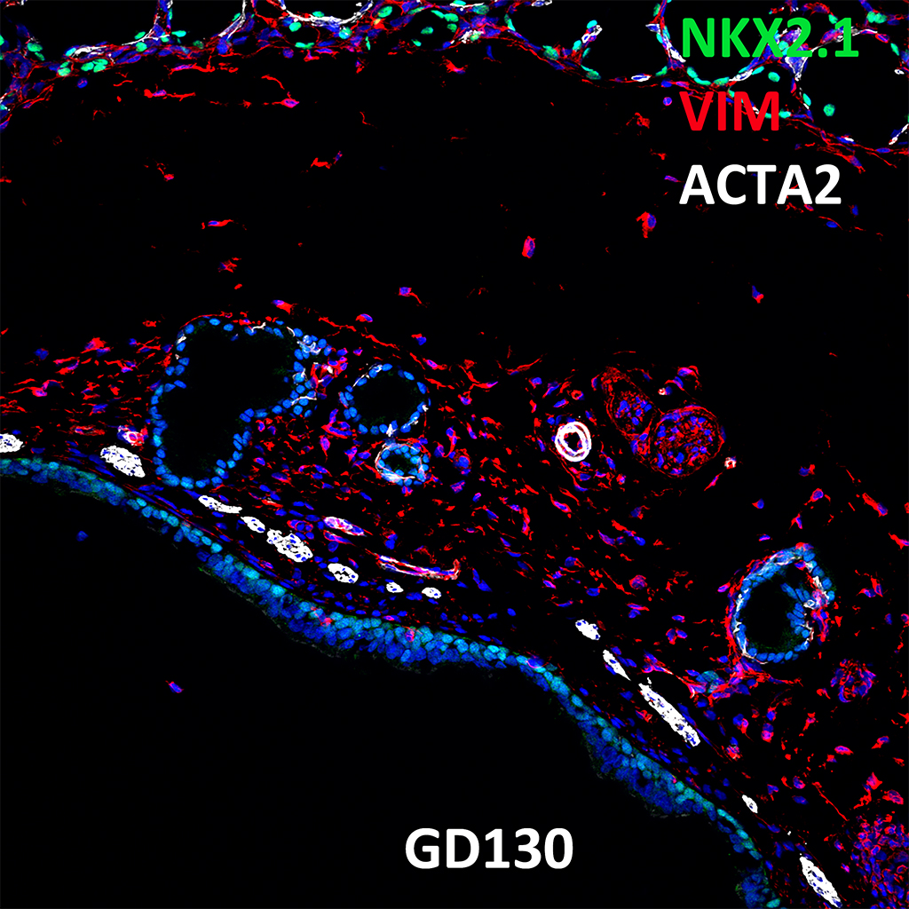 GD130 Fetal Monkey Lung Immunofluorescence and Confocal Imaging Showing Expression of NKX2.1, VIM, and ACTA2