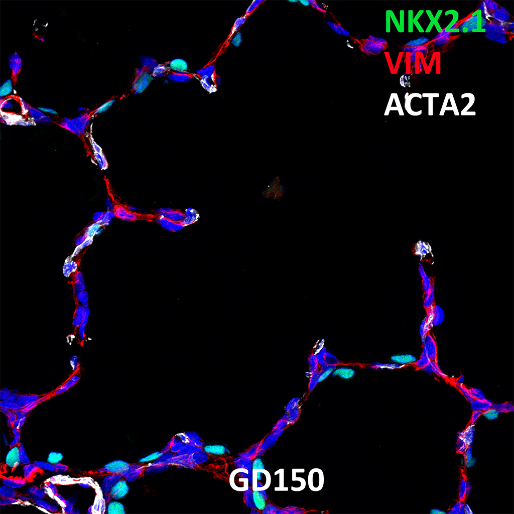 GD150 Fetal Monkey Lung Immunofluorescence and Confocal Imaging Showing Expression of NKX2.1, VIM, and ACTA2
