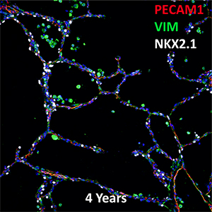 4 Year Old Human Lung PECAM1, VIM, and NKX2.1 Confocal Imaging