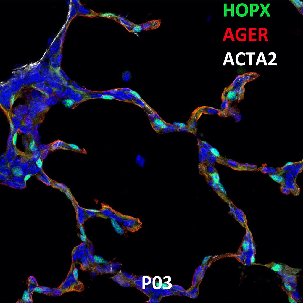 Post Natal Day 3 Confocal Imaging Showing Protein Expression of Hopx, Ager and Acta2 Genes