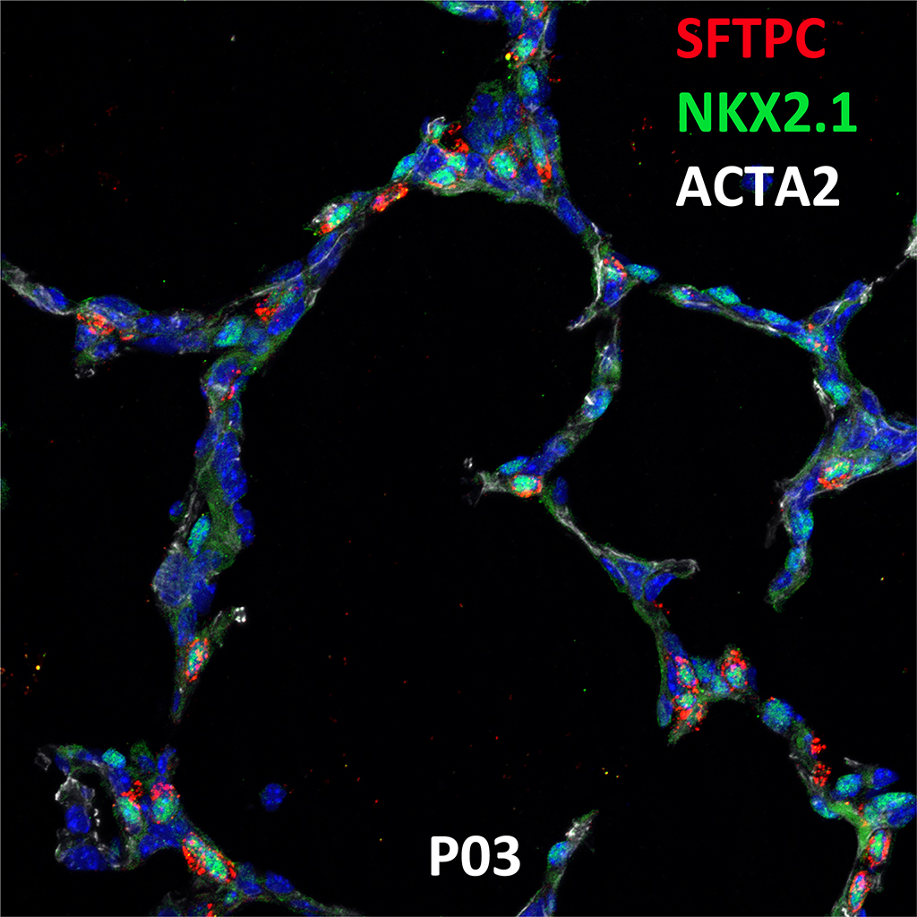 Postnatal Day 3 Confocal Imaging Showing Protein Expression of SFTPC, NKX2.1, and ACTA2 Genes