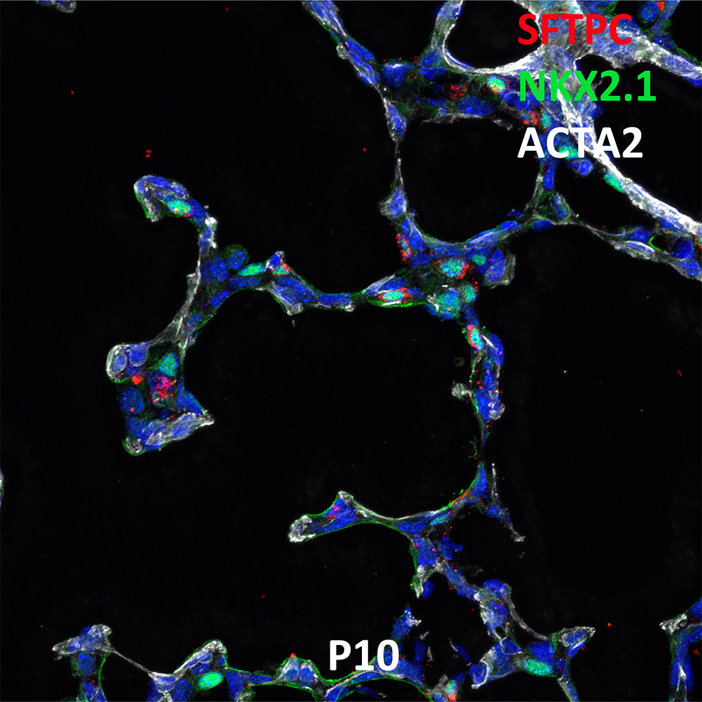 Postnatal Day 10 Confocal Imaging Showing Protein Expression of SFTPC, NKX2.1, and ACTA2 Genes