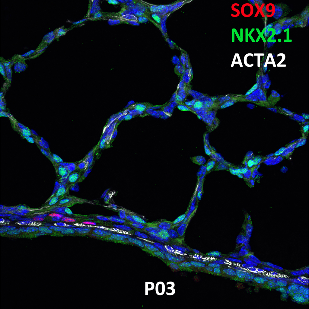 Postnatal Day 3 Confocal Imaging Showing Protein Expression of Sox9, Nkx2.1, and Acta2 Genes