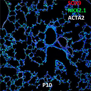 Postnatal Day 10 C57BL6 SOX9, NKX2.1, and ACTA2 Confocal Imaging