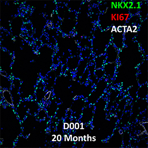 20 Month-Old Human Lung NKX2.1, KI67, and ACTA2 Confocal Imaging
