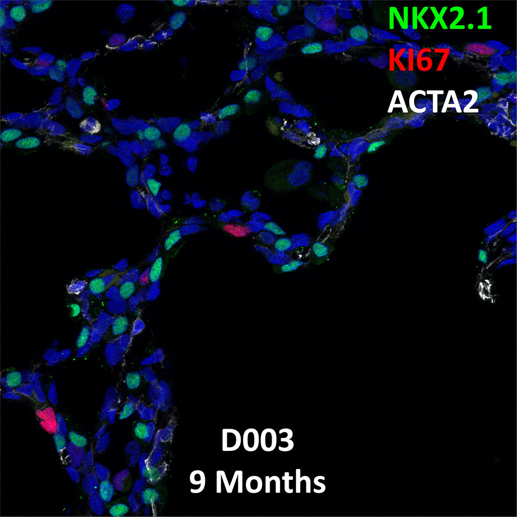 9 Month-Old Human Lung Immunofluorescence and Confocal Imaging Showing Expression of Nkx2.1, Ki67, and Acta2 Genes