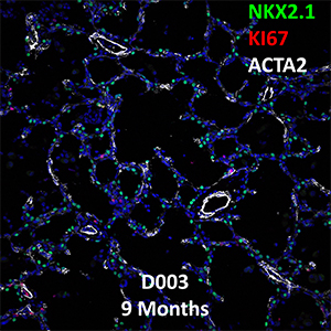 9 Month-Old Human Lung NKX2.1, KI67, and ACTA2 Confocal Imaging