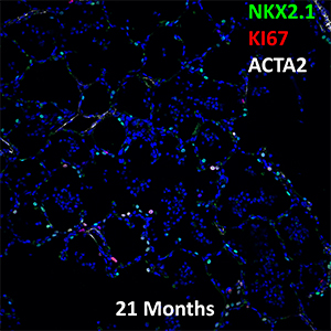 21 Month-Old Human Lung NKX2.1, KI67, and ACTA2 Confocal Imaging