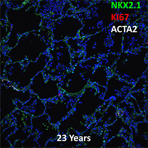 23 Year-Old Human Lung NKX2.1, KI67, and ACTA2 Confocal Imaging