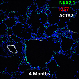 4 Month-Old Human Lung NKX2.1, KI67, and ACTA2 Confocal Imaging