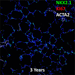 3 Year-Old Human Lung NKX2.1, KI67, and ACTA2 Confocal Imaging