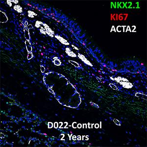 2 Year Human Lung NKX2.1, KI67, and ACTA2 Confocal Imaging