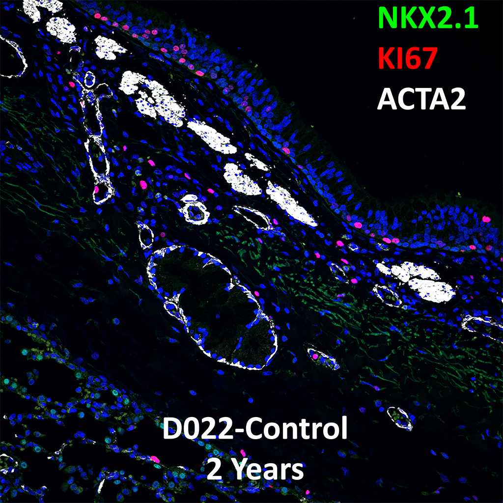 2 Year-Old Human Lung Immunofluorescence and Confocal Imaging Showing Expression of Nkx2.1, Ki67, and Acta2 Genes