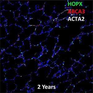 2 Year Human Lung HOPX, ABCA3, and ACTA2 Confocal Imaging