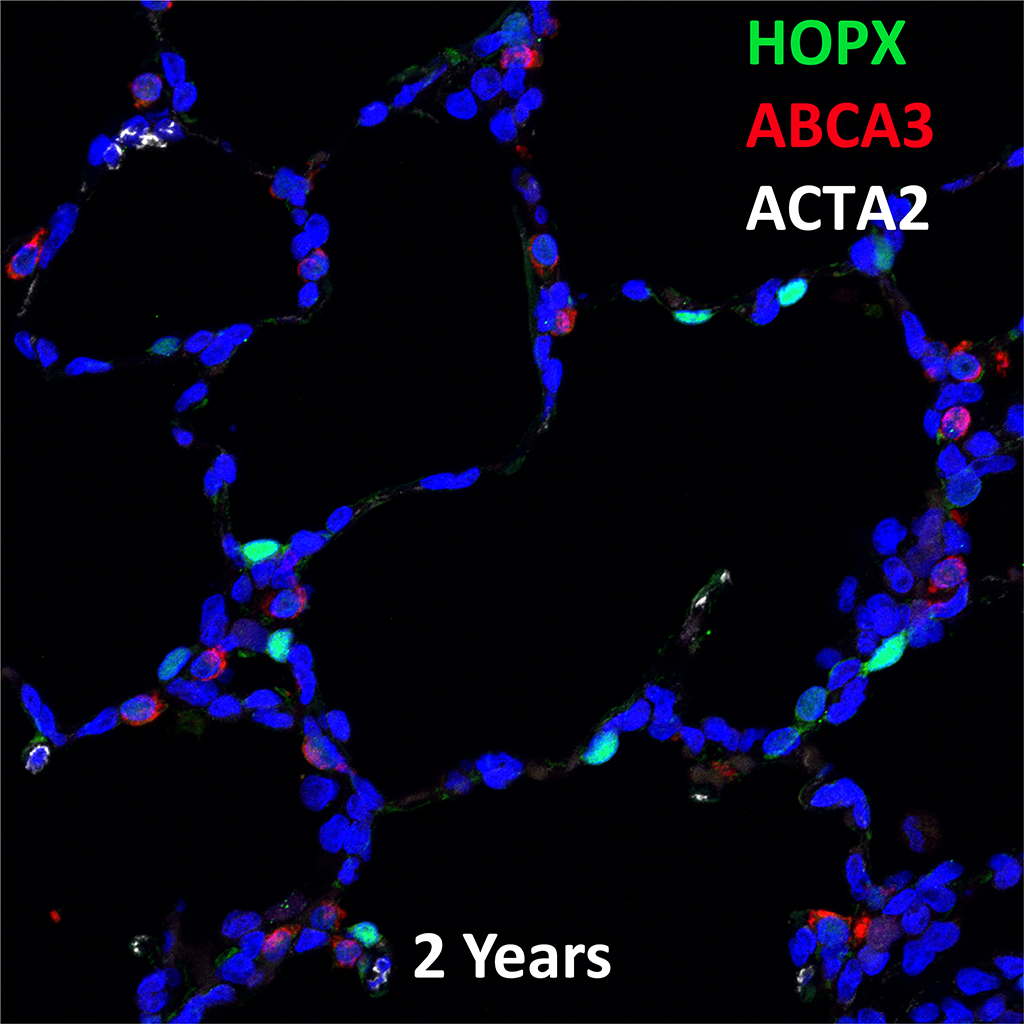 2 Year-Old Human Lung Immunofluorescence and Confocal Imaging Showing Expression of Hopx, Abca3, and Acta2 Genes
