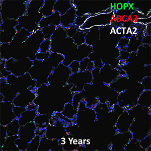 3 Year Human Lung LMH, HOPX, ABCA3, and ACTA2 Confocal Imaging