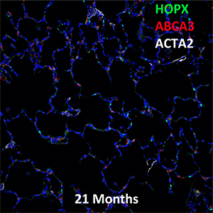 21 Month-Old Human Lung HOPX, ABCA3, and ACTA2 Confocal Imaging