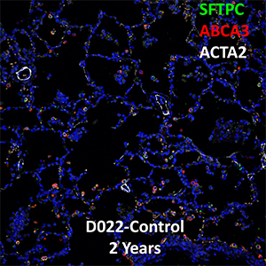 2 Year Human Lung SFTPC, ABCA3, and ACTA2 Confocal Imaging