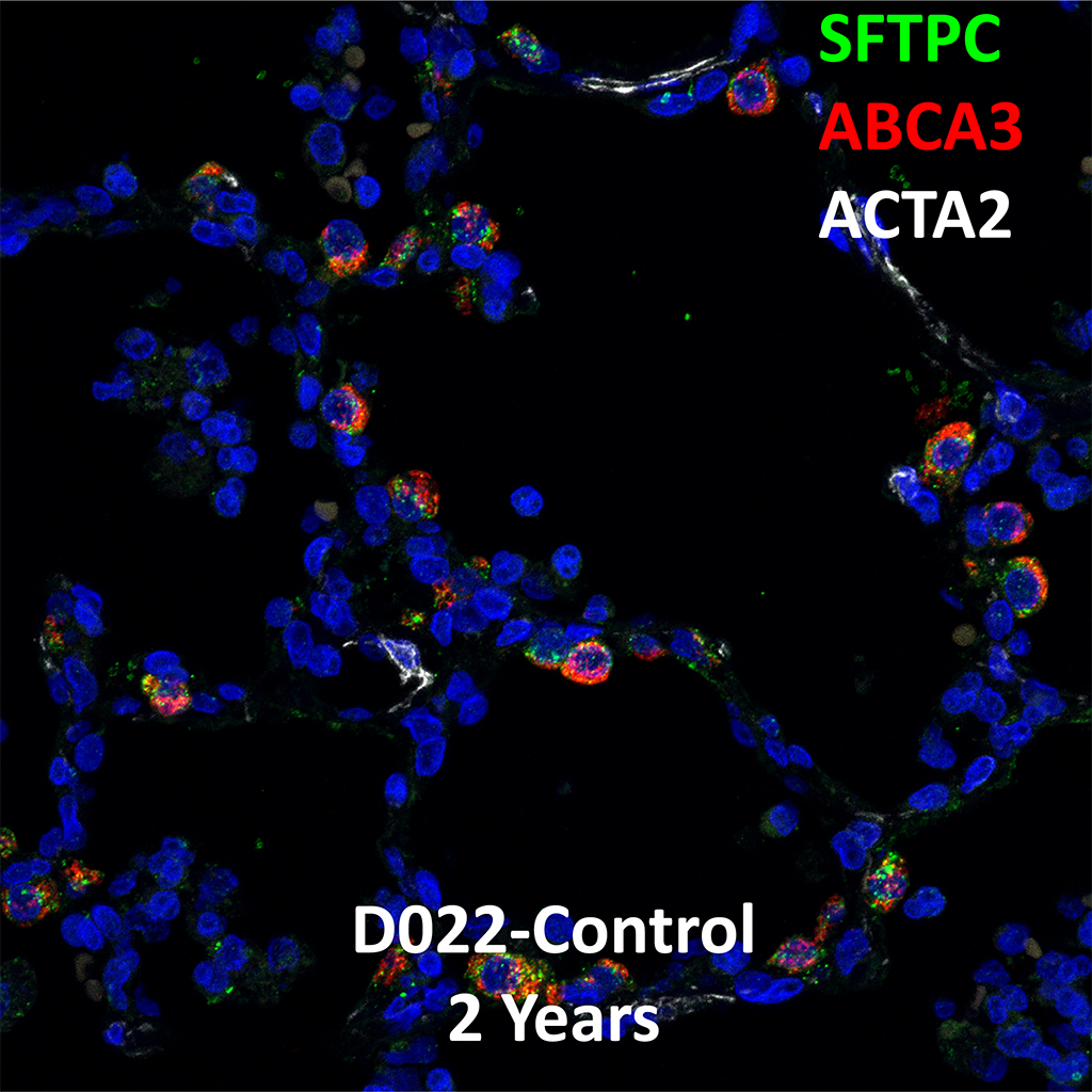 2 Year-Old Human Lung Immunofluorescence and Confocal Imaging Showing Expression of SFTPC, ABCA3, and ACTA2 Genes
