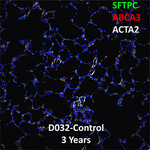 3 Year Human Lung SFTPC, ABCA3, and ACTA2 Confocal Imaging