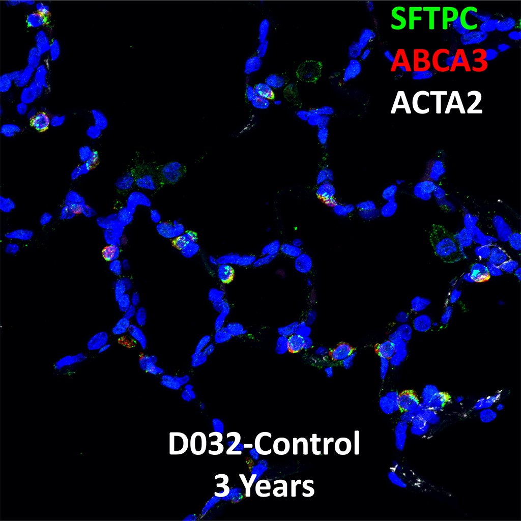 3 Year-Old Human Lung Immunofluorescence and Confocal Imaging Showing Expression of SFTPC, ABCA3, and ACTA2 Genes