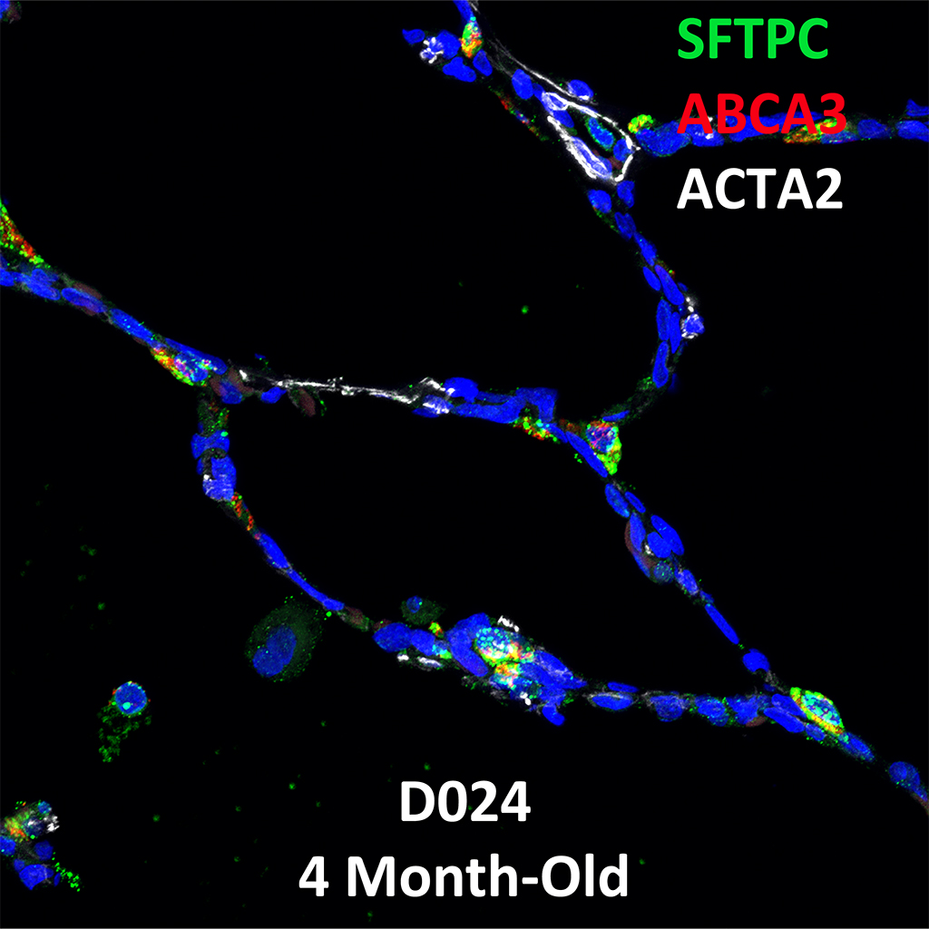 Confocal Imaging Showing Protein Expression of SFTPC, ABCA3, and ACTA2 Genes