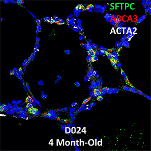 4 Month-Old Human Lung SFTPC, ABCA3, and ACTA2 Confocal Imaging