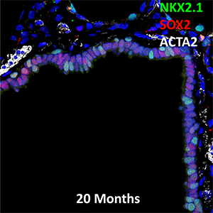 20 Month-Old Human Lung NKX2.1, SOX2, and ACTA2 Confocal Imaging