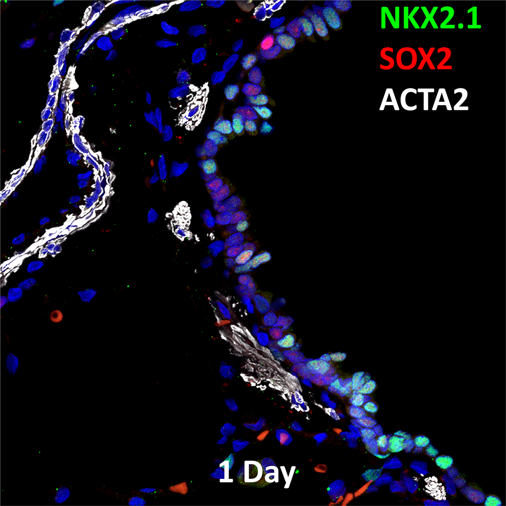 Confocal Imaging Showing Protein Expression of NKX2.1, SOX2, and ACTA2 Genes
