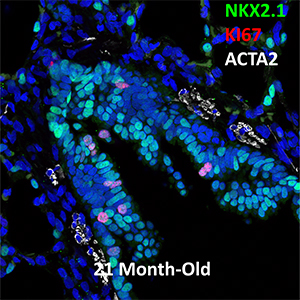21 Month-Old Human NKX2.1, KI67, and ACTA2 Confocal Imaging