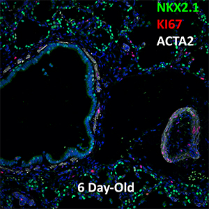 6 Day Human Lung NKX2.1, KI67, and ACTA2 Confocal Imaging