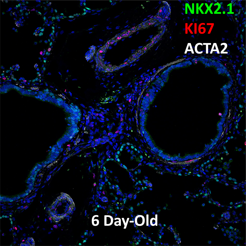 Confocal Imaging Showing Protein Expression of NKX2.1, KI67, and ACTA2 Genes