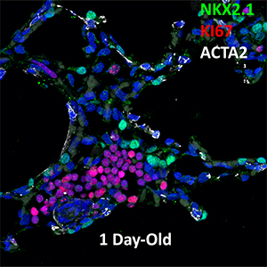 1 Day Human Lung NKX2.1, KI67, and ACTA2 Confocal Imaging