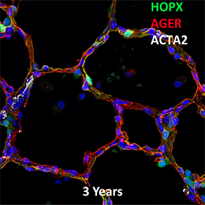3 Year Human Lung HOPX, AGER, and ACTA2 Confocal Imaging