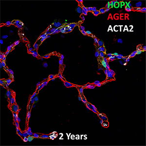 2 Year Human Lung HOPX, AGER, and ACTA2 Confocal Imaging