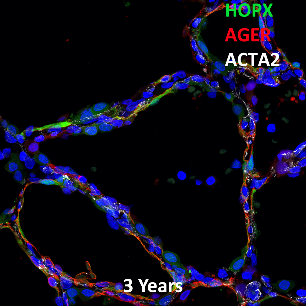 Confocal Imaging Showing Protein Expression of HOPX, AGER, and ACTA2 Genes