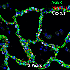 2 Year Human Lung AGER, PECAM-1,and NKX2.1 Confocal Imaging
