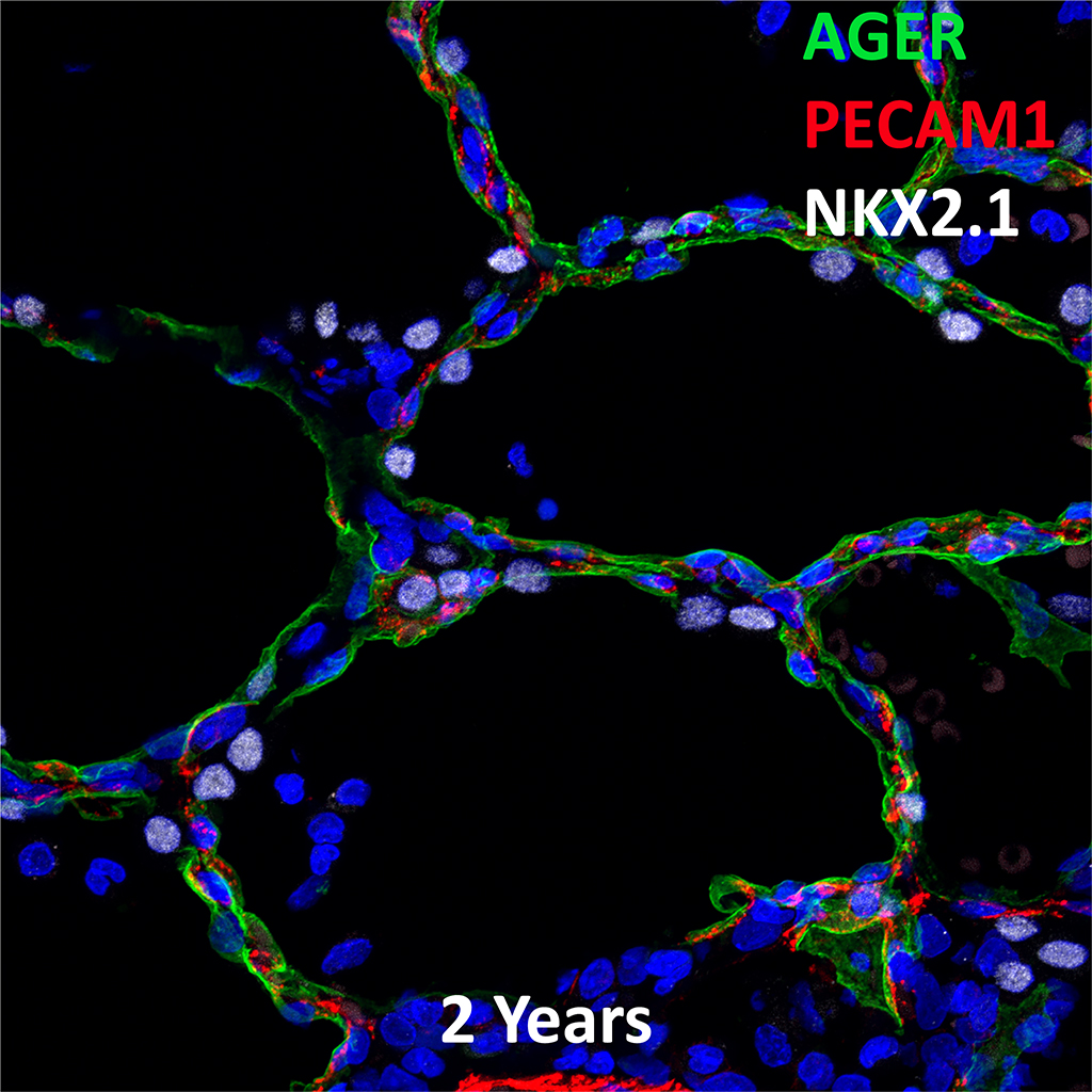 Confocal Imaging Showing Protein Expression of AGER, PECAM1, and NKX2.1 Genes