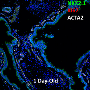 1 Day-Old Human Lung NKX2.1, KI67, and ACTA2 Confocal Imaging