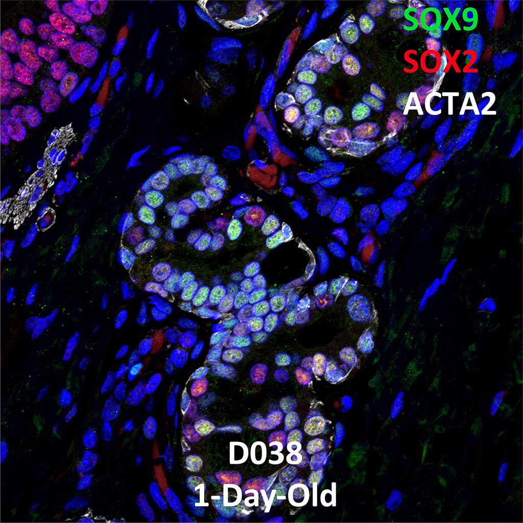1 Day-Old Human Lung Immunofluorescence and Confocal Imaging Donor D038 Showing Expressions of SOX9, SOX2, and ACTA2