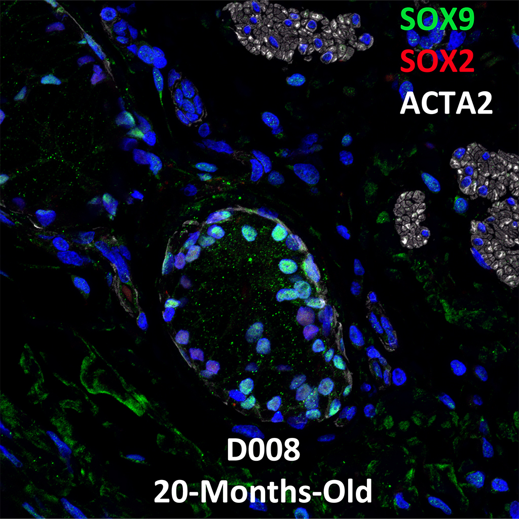 20 Month-Old Human Lung Immunofluorescence and Confocal Imaging Donor D008 Showing Expressions of SOX9, SOX2, and ACTA2