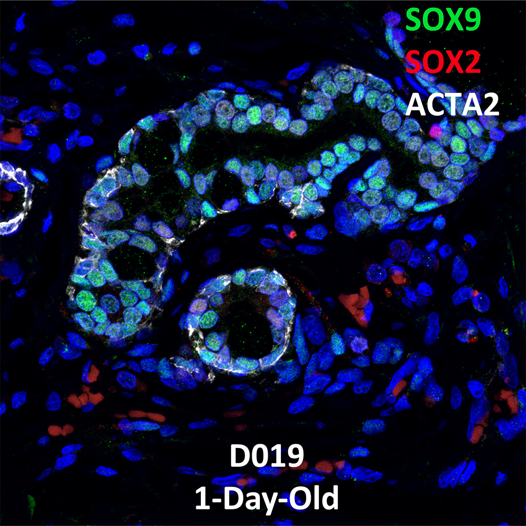 1 Day-Old Human Lung Immunofluorescence and Confocal Imaging Donor D019 Showing Expressions of SOX9, SOX2, and ACTA2
